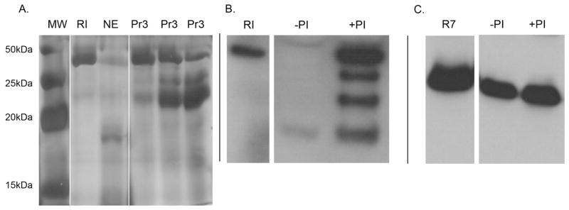 Neutrophil proteases degrade RI ( A ) Representative silver stained SDS-PAGE gels demonstrating recombinant RI proteolysis by the neutrophil proteases neutrophil elastase (NE) and proteinase 3 (Pr3). Lane 1: molecular weight marker (MW), Lane 2: 3 μg recombinant RI without proteases, Lane 3: RI incubated with 100ng NE, Lane 4–6: recombinant RI incubated with 6ng, 30ng, and 60ng Pr3, respectively. ( B/C ) Clinical urine isolates infected with E. coli were incubated with and without protease inhibitor cocktail (PI) and subjected to SDS-PAGE followed by Western immunoblot analysis using a monoclonal antibody directed against RI or a polyclonal antibody directed against RNase 7. (B) Results demonstrate that urine proteases degrade urinary RI and protease inhibitor cocktail prevents RI proteolysis. (C) Urinary proteases did not cause significant RNase 7 degradation. 50ng recombinant RI or RNase 7 served as control.