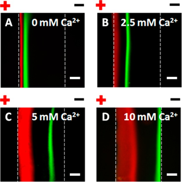 Electrophoretic-electroosmotic focusing (EEF) of Texas Red-DHPE and streptavidin biomarkers on SLBs after PLD-catalyzed POPA formation with (A) 0, (B) 2.5, (C) 5, and (D) 10 mM Ca 2+ concentrations. The scale bars are 100 μm.