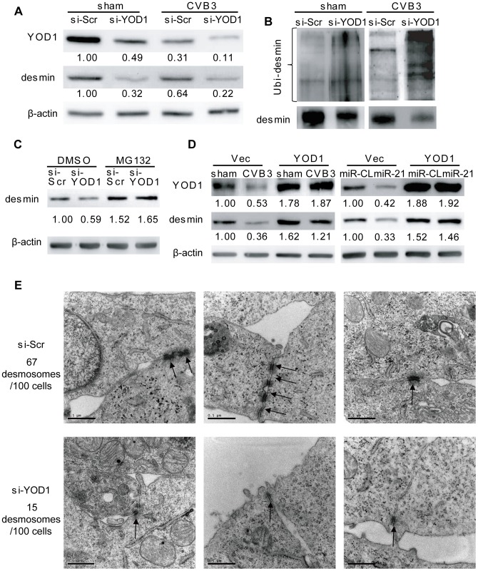 YOD1 regulates desmin degradation during CVB3 infection. ( A ) Silencing YOD1 expression downregulates desmin. HL-1 cells were transfected and infected as indicated. YOD1 and desmin proteins were detected by WB. ( B ) YOD1 siRNA enhances desmin ubiquitination. HL-1 cells were transfected and infected as indicated. Desmin was immunoprecipitated and analyzed by WB detection of ubiquitin. ( C ) Proteasome inhibitor blocks the YOD1 siRNA-mediated desmin degradation. HL-1 cells were transfected and treated with DMSO or MG132 as indicated. Proteins were extracted to detect the desmin levels. ( D ) Overexpression of YOD1 inhibits desmin degradation. HL-1 cells were divided into two groups: one group was transfected with empty vector or YOD1-expressing vector and then infected with CVB3; the other group was co-transfected with miRNA mimics and YOD1-expressing plasmid or empty vector. Desmin and YOD1 expression levels were evaluated by WB. ( E ) YOD1 siRNA disrupts desmosome structure. HL-1 cells were transfected with scrambled siRNAs or YOD1 siRNAs and the desmosome structures were analyzed by EM. Three representative views were listed for each sample and desmosomes were indicated with black arrows. For each sample, 100 cells were analyzed and the numbers of desmosomes observed were indicated. Magnification: 37000×. Bar: 0.5 µm.