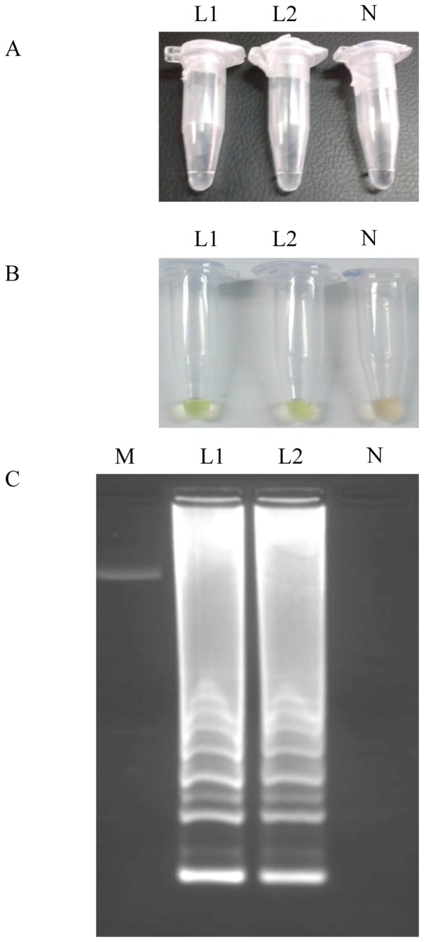 LAMP detection of Loa loa genomic DNA samples. (A) By the naked eye; (B) by adding SYBR Green I; (C) on agarose gel stained with ethidium bromide. Lanes L1 and L2: Loa loa adult worm genomic DNA; lane N: no template (negative control); lane M: 50 bp DNA ladder (Molecular weight marker XIII, Roche).