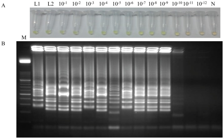 Sensitivity assessment of the LAMP assay for Loa loa performed with a heating block using simulated human blood samples spiked with serial dilutions of genomic DNA by the addition of SYBR Green I (A) or by visualization on agarose gel stained with ethidium bromide (B). Lane L1: genomic DNA from Loa loa (5 ng) as positive control; lane L2: human blood sample spiked with 5 ng of genomic DNA from Loa loa ; lanes 10 −1 –10 −12 : human blood samples spiked with 10-fold serially dilutions; lane N: negative control (no DNA template). Lane M: 50 bp DNA ladder (Molecular weight marker XIII, Roche).