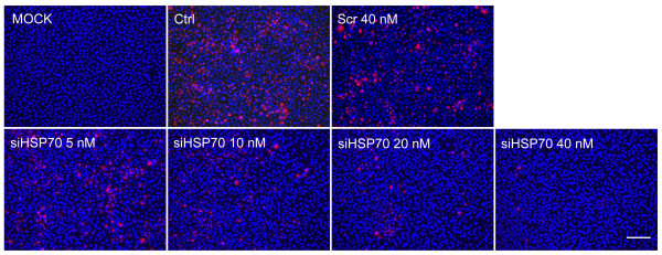 The knockdown of HSP70 reduced the level of viral dsRNA RI. MARC-145 cells were transfected with no siRNA (Ctrl), scramble siRNA (Scr), or different concentrations of siRNAs targetting HSP70 (siHSP70). After 24 hours, cells were mock infected or infected with PRRSV at an MOI of 0.1. Cells were fixed at 24 h.p.i and IFA was performed to detect viral dsRNA (red) with anti-dsRNA (J2) antibody. Nuclei were stained with Hoechst dye 33258 (blue). Bar, 200 μm.