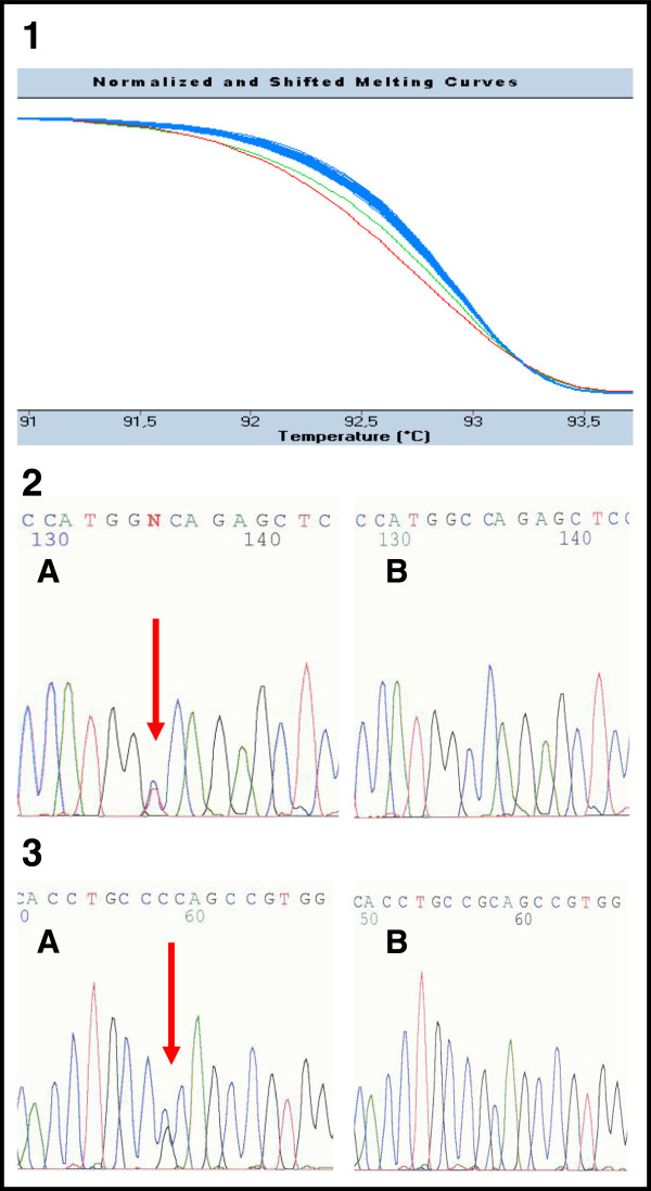 The example of <t>HRM</t> analysis in patients 385 and 419 (exon 39). 1 Detection of mutations by HRM. The green curve in the diagram corresponds to the <t>PCR</t> fragment carrying the nonsense mutation c.11172G > A (p.Trp3724X) in patient 385. The red curve refers to the PCR fragment carrying the likely pathogenic substitution c.11248C > G (p.Arg3750Gly) in patient 419. The rest of fragments with blue curves are wild type samples (patients without sequence changes). 2, 3 Confirmation of mutations by direct sequencing in patient 385 (number 2) and patient 419 (number 3). Both sequences are in reverse direction. The letter A corresponds to the mutated sequence; B is the wild type.
