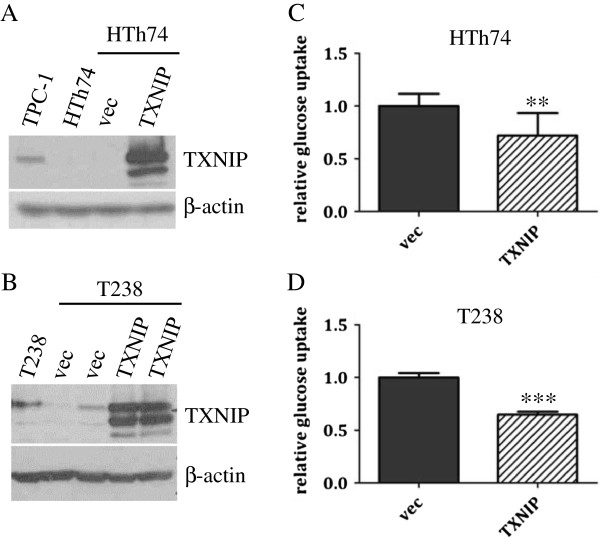 TXNIP overexpression in ATC HTh74 and T238 cells attenuates glucose uptake. HTh74 and T238 cells were transduced with retrovirus encoding human TXNIP or vector control as well as a selectable antibiotic resistance marker, and stable pools were generated under antibiotic selection. Western blot analysis of whole cell lysates with TXNIP- and β-actin-specific antibodies is shown for HTh74 (A) and T238 (B) . Glucose uptake assays were performed as described in Figure 1 using the HTh74 stable cell lines (C) and T238 stable cell lines (D) . Data from all experiments were combined, and glucose uptake from each cell line was normalized to vector control levels (average set at 1). **p = 0.001, ***p