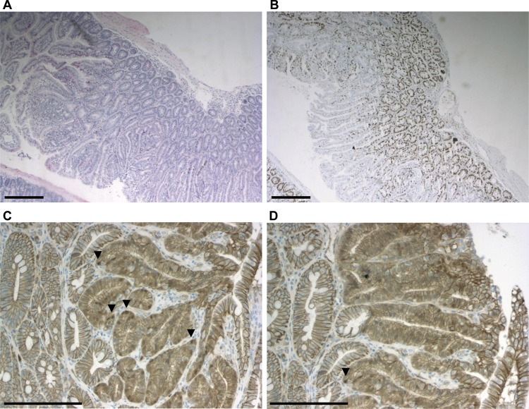 Proliferation and Wnt activation in representative R482Q/+ polyps shown by <t>immunohistochemistry.</t> (A) haematoxylin–eosin stained section of polyp—scale bars 300 μm. (B) Ki67 expression in polyp—scale bars 300 μm. (C, D) β-Catenin expression—scale bars 150 μm; arrowheads highlight nuclear staining.
