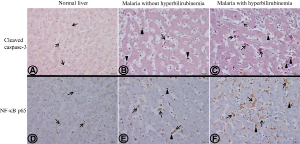 Representative immunohistochemical staining patterns of cleaved caspase-3 (A-C) and NF-κB p65 (D-F) in a normal liver showing negative staining for hepatocytes and Kupffer cells (A,D); in the livers of a severe P. falciparum malaria case without hyperbilirubinaemia (B,D) and with hyperbilirubinaemia (C,F). Hepatocytes are generally unaffected. Arrows show Kupffer cells lying next to the hepatic cord, within the sinusoidal area. In the normal liver, Kupffer cells are small, non-reactive and rarely express the cleaved caspase-3 marker (A) and show few NF-κB p65 (D) compared with severe P. falciparum malaria without hyperbilirubinaemia (B,E) and with hyperbilirubinaemia (C,F) where Kupffer cells are enlarged and hyperplastic. Most Kupffer cells containing haemozoin pigment (arrowheads) expressed apoptotic and NF-κB p65 markers. Numerous Kupffer cells show apoptosis (C) and NF-κB p65 expression (F) in severe P. falciparum malaria with hyperbilirubinaemia. All images are at 400x magnification; bars are 20 μm.