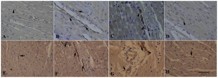 Histological study of cardiac nerve fibers at infarct border in sham-operated and infarcted hearts. (A–D) <t>GAP-43-positive</t> nerve fibers (arrows) in sham-operated, MI-control, MI-GFP, and MI-SiRNA groups, respectively. Few GAP43-positive nerve fibers were observed in the sham-operated and MI-SiRNA groups. (E–H) TH-positive nerve fibers (arrows) in sham-operated, MI-control, MI-GFP, and MI-SiRNA groups, respectively. In the MI-GFP and MI-control groups, nerve fibers were disordered or unevenly distributed. Conversely, relatively normal nerve fibers were observed in the MI-SiRNA group. Bar = 100 µm.