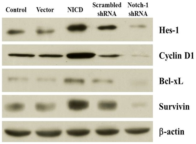 Effect of Notch-1 signaling on the expression of Hes-1, cyclin D1, Bcl-xL, and survivin. The expression of Hes-1, cyclin D1, Bcl-xL, and survivin protein was detected by western blotting analysis. The β-actin was used as a loading control.