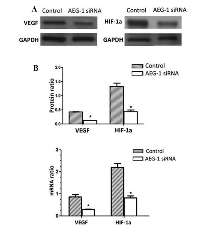 Effects of AEG-1 siRNA on VEGF and HIF-1α expression. MGC-803 cells were transfected with AEG-1 siRNA and Con-siRNA. (A) VEGF and HIF-1α were determined by western blotting. Upper panel shows a representative blot for VEGF and HIF-1α protein, and the lower panel shows the quantification of VEGF and HIF-1α protein levels. (B) VEGF and HIF-1α mRNA were determined by real-time reverse transcription polymerase chain reaction in MGC-803 cells and the levels of VEGF and HIF-1α mRNA are presented as the (VEGF and thrombospondin-1)/GAPDH mRNA ratio. Data are presented as means ± standard deviation of three independent experiments. * P
