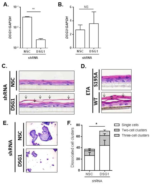 Loss of DSG1 reduces esophageal epithelial cell adhesion qPCR analysis of DSG1 (A) and DSG3 (B) in ALI-differentiated EPC2 cells stably transduced with non-silencing control (NSC) or DSG1 shRNA. H E-stained sections from stably transduced cells differentiated at the ALI (C). H E-stained sections from EPC2 cells exposed to the air interface and treated with 10 μg/mL ETA (WT) or the S195A inactive mutant for 24 h (D). Arrows (C–D) indicate cell separation within the suprabasal epithelium. Cytospins from NSC or DSG1 shRNA-transduced EPC2 cells following dispase adhesion assays (E) and quantification of dissociated cell clusters are shown (F). Images in (C–E) are representative of 4–5 experiments performed in duplicate. Data in (A–B) and (E) are from 3 experiments performed in duplicate and are represented as the mean + SEM: NS (not significant), * p