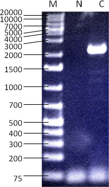 """The RT-PCR result with primers specific to the coding region of the CHM mRNA showing a 2.2 kb amplicon. Size marker (""""M""""): GeneRuler 1kb+ DNA Ladder (Thermo Fisher Scientific, Waltham, MA), water control (""""N""""), RNA used from healthy male control subject (""""C""""). This demonstrates the ability to detect the presence of CHM RNA when it is expected to be present by creating and amplifying cDNA."""