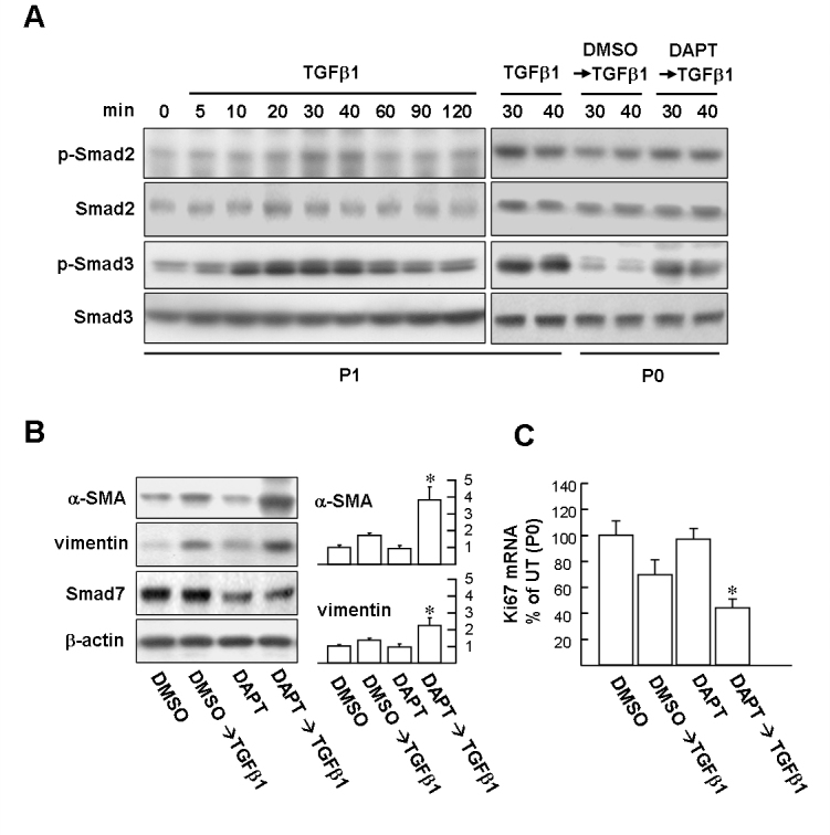 Suppressing Smad7 protein expression with Notch inhibitor N-(N-[3,5-difluorophenacetyl]-l-alanyl)-S-phenylglycine t-butyl ester facilitates epithelial–mesenchymal transition and growth arrest induced by transforming growth factor-beta. A : Western blot analysis of Smad 2/3 phosphorylation. Left planes: Transforming growth factor-beta (TGFβ1) time-dependently induces Smad2/3 phosphorylation in P1 cells. Right planes: P1 cells were treated with 10 ng/ml TGFβ1 for 30 and 40 min as positive control. P0 and P1 cells were pretreated with 10 µM N-(N-[3,5-difluorophenacetyl]-l-alanyl)-S-phenylglycine t-butyl ester <t>(DAPT)</t> or dimethyl sulfoxide <t>(DMSO)</t> vehicle for 48 h and then stimulated with TGFβ1 for 30 and 40 min, respectively. Cells were harvested and subjected to western blot analysis with phosphospecific antibodies of Smad2 and Smad3. The total protein levels of Smad2 and Smad3 were estimated by reprobing the membranes with total Smad2 and Smad3 antibody shown in the panels below. B : P0 LSCs pretreated with DAPT facilitates mesenchymal marker expression induced by TGFβ1. Representative blots (left panels) and densitometric analysis with standard deviation (SD; right columns) of three independent experiments are shown. *p