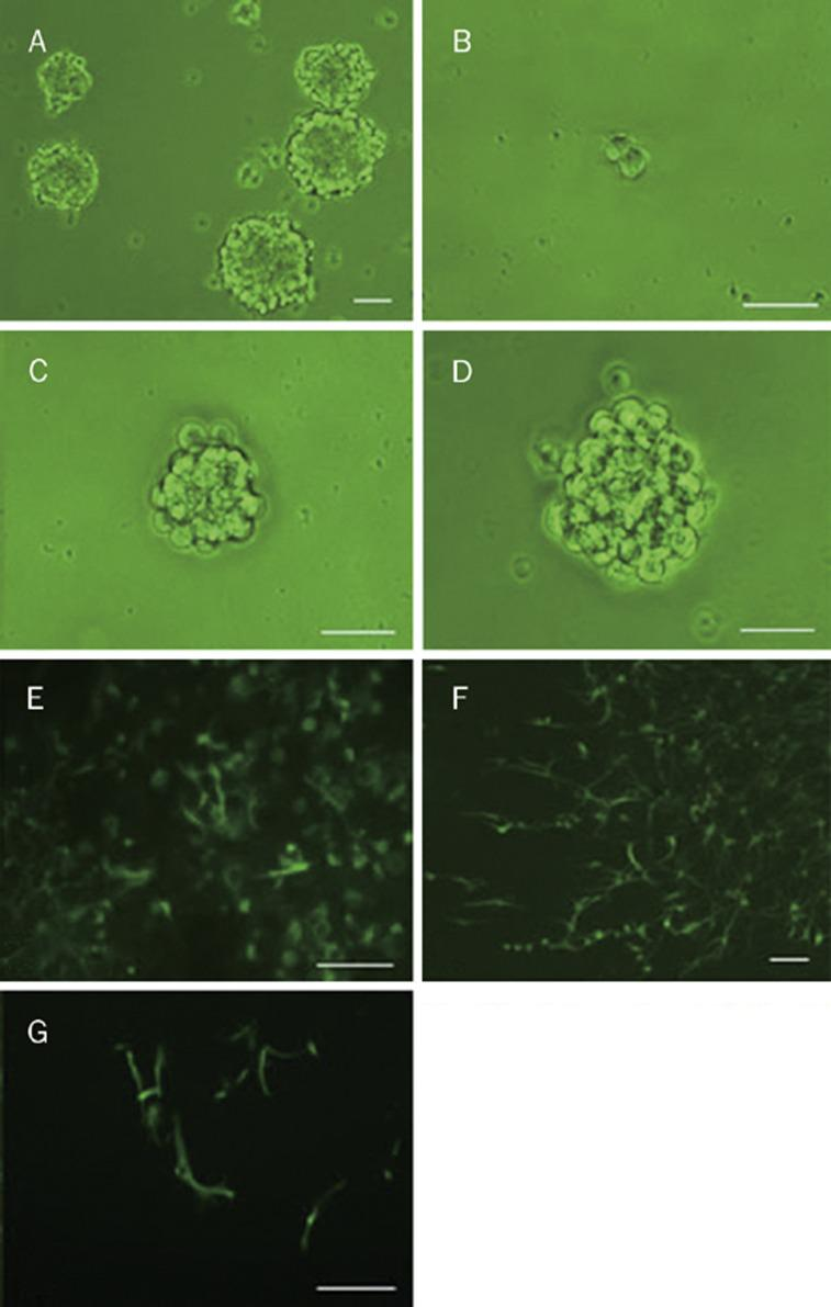 (A) primary neural stem cells. A cell became to divide at d 2 after plating single cells in single wells of 96-well plates (B) and proliferated continually at d 6 (C), and neurosphere composed of several decades of cells were formed at day 10 (D). (E–F) Immunocytochemical staining of differentiated neural stem cells (NSCs). (E) nestin; (F) GFAP (glial fibrillary acidic protein); (G) NSE (neurone specific enolase). Bars: 100 μm.