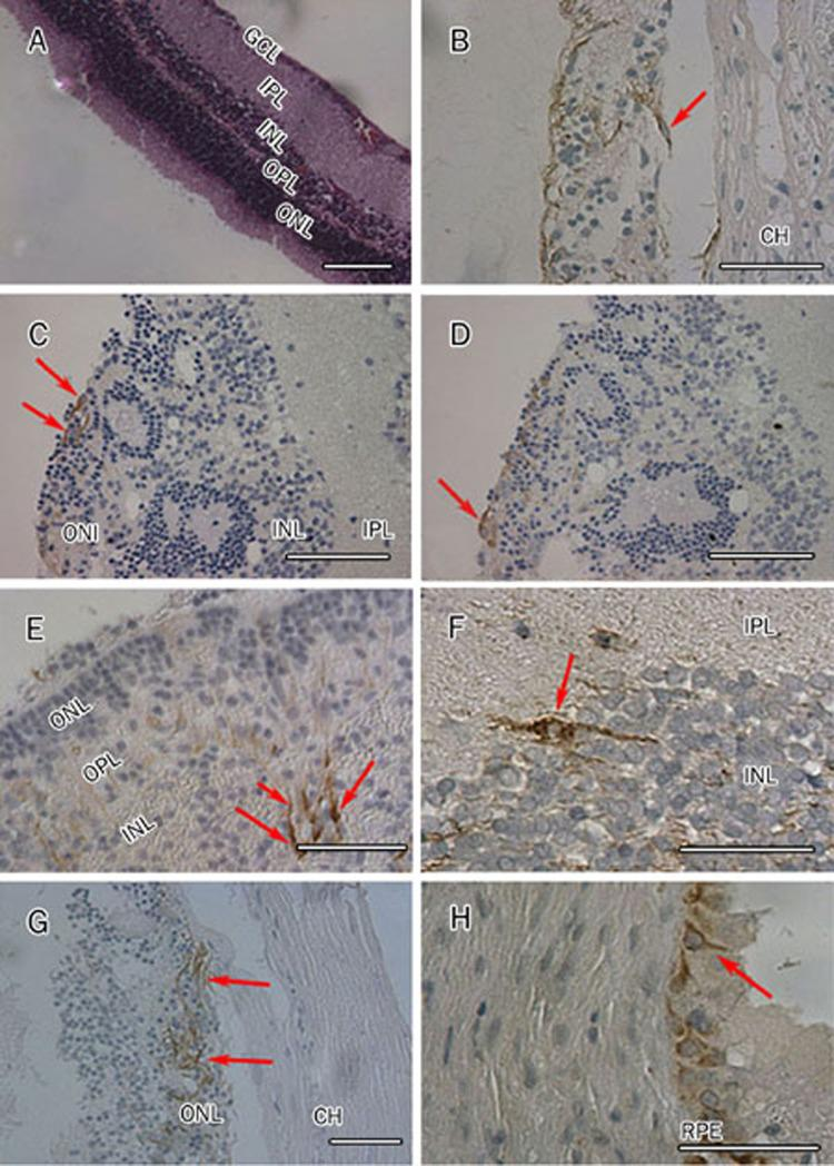 Immunohistochemistry of injected site of rat retinas. HE staining showed normal retinal structure (A). The nestin positive cells of BDNF-NSCs group (B, red arrow) existed between the retina and choroid at d 10 after transplantation. One month after transplantation, immunolabeling of retinal sections revealed that a few of transplanted cells expressed NSE (C: BDNF-NSCs, red arrows) and GFAP (D, BDNF-NSCs, red arrow) and lay in the outer nuclear layer (ONL) and exhibited neuronal-like morphologies. At 2 months after injected, immonuhischemical analysis demonstrated that most of the donor cells appeared to migrate to the deep retina. Within the ONL and outer plexiform layers (OPL) of the retina, we commonly observed bodies and processes of donor cells expressing NSE with extensive branching in the BDNF-NSCs group (E, long red arrows: bodies of cells; short red arrow: processes of cells). Whole mount analysis indicated that, 3 months after transplantation of donor cells into the subretinal space of normal rats, a few of NSE positive cells of BDNF-NSCs group had migrated into inner nuclear layer (INL) of the retina (F, red arrow). Graft of control-NSCs were still in ONL at 3 months (G, red arrows). A few of grafted cells lay in RPE (H, red arrow). BDNF, brain-derived neurotrophic factor; NSCs, neural stem cells; NSE, neurone specific enolase; GFAP, glial fibrillary acidic protein; ONL, outer nuclear layer; INL, inner nuclear layer; OPL, outer plexiform layer; RPE, retinal pigment epithelium. Bars, 100 μm.