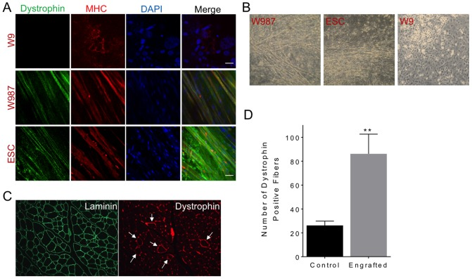 Myofiber differentiation and engraftment. (a) Immunofluorescence staining of dystrophin in W9, W987, and ESC. Myosin heavy chain (MHC) identified muscle cells after differentiation. DAPI was used to stain nuclei. (b) Myotube formation in differentiated W987 and W9 iPSC and ESC. Note that W9 iPSC did not form myotubes. (c) Engraftment of corrected mdx iPSC in mouse TA muscle. Approximately 750,000 W987 iPSC that were differentiated for 13 days in vitro and sorted for the SM/C-2.6 antibody were injected into the TA muscle of an irradiated mdx/;SCID mouse. After three weeks, muscle sections were prepared and stained. Staining for laminin delineated individual muscle fibers, while staining for dystrophin revealed engraftment of corrected iPSC (arrows). (d) Numbers of dystrophin-positive fibers per TA muscle, total section, are shown for engrafted muscle versus uninjected contralateral muscle (control).