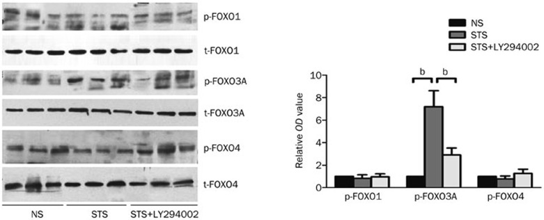 The effect of STS on phosphorylated FOXO1, FOXO3A, and FOXO4 levels. Left: a representative Western-blot from left ventricle tissues isolated from each group showing the effect of STS on the levels of phosphorylated (p)-FOXO1, p-FOXO3A, p-FOXO4, total t-FOXO1, t-FOXO3A, and t-FOXO4. Right: the quantitative estimation of p-FOXO1, p-FOXO3A, and p-FOXO4 levels are shown as the relative OD values in STS and <t>STS+LY294002</t> groups compared to the NS group. b P