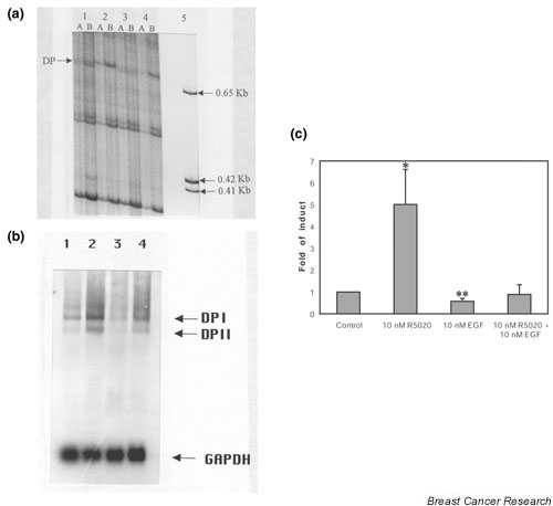 Differential display and Northern blot analysis of R5020 and epidermal growth factor (EGF) regulation of desmoplakin I (DPI) and II (DPII) in T47D cells. (a) Autoradiography of a representative differential display RT-PCR acrylamide gel. 33 P-labeled <t>DNA</t> fragments generated by RT-PCR from RNAs of control T47D cells (lane 1), 10 nmol/l R5020 treatment (lane 2), 10 nmol/l EGF treatment (lane 3), 10 nmol/l R5020 plus 10 nmol/l EGF treatment (lane 4). Each lane contains 5 μL PCR mixture. (A) 1:20 dilution of RT-PCR <t>cDNA.</t> (B) 1:40 dilution of RT-PCR cDNA. The arrow indicates desmoplakin (DP). Molecular weight standards of 0.65, 0.42, and 0.41 kb are indicated in lane 5. (b) Photograph of a representative Northern blot analysis of DPI and DPII, and glyceraldehyde-3-phosphate dehydrogenase (GAPDH) mRNA expression in T47D cells. Lane 1: control T47D cells were left untreated for 48 hours. Matched sister colonies of T47D cells received 10nmol/l R5020 (lane 2), 10 nmol/l EGF (lane 3), or 10 nmol/l R5020 plus 10 nmol/l EGF for 48 hours (lane 4). Ten micrograms of total RNA was subjected to Northern blot analysis as described in the Methods section. (c) The Northern blot films were scanned. The graphs indicate the fold difference of desmoplakin expression compared vehicle (set at a value of 1) following measurement of the band intensities. In each independent experiment, the desmoplakin band for each treatment condition was normalized to the GAPDH signal. The experiment was repeated three times and the mean values from these experiments ± SEM are reported. Statistical significance was determined using t-test. * P