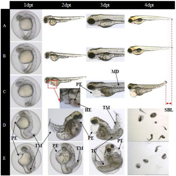 Toxic effect of diclofenac on zebrafish during the exposure at 1–4 dpt. (A) Control group; (B) 1.01 μM exposure group; (C) 3.38 μM exposure group; (D) 10.13 μM exposure group; (E) 15.2 μM exposure group. HE: hemagglutination, MD: muscle degeneration, PE: pericardial edema, SBL: short body length, TC: trunk curvature, TM: tail malformation.