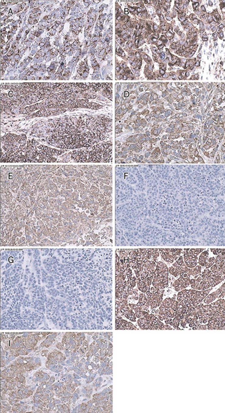 Immunohistochemical expression of Fas; FasL; caspase3; Bcl-2; Bax; VEGF and bFGF in orthotopic gastric carcinoma samples or orthotopic gastric carcinoma treated with peptide 19 and peptide 21. Plasma or membrane staining was frequently observed in tumour cells treated with peptide 19 (A, B, C, D, and E; Fas; FasL; caspase 3; Bcl-2 and Bax, respectively A×400, B×400, C×200, D×400, and E×200). Absent expression of bFGF (F×200) or VEGF (G×200) was observed in tumour cells treated with peptide 21. Expression of bFGF (H×200) and VEGF (I×400) were high in orthotopic gastric carcinoma samples without treatment.