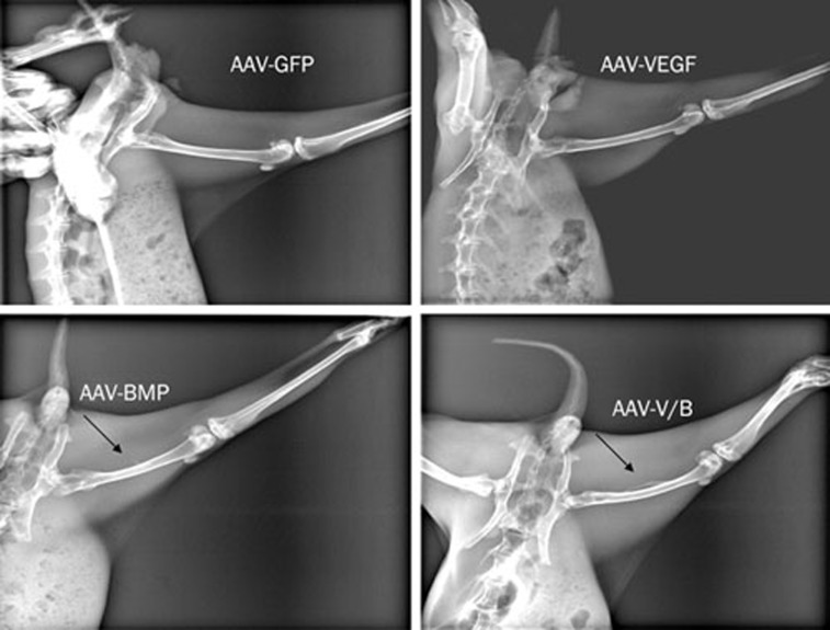Representative images of orthotopic ossification in the rabbit hind limb. Orthotopic ossification was radiographically evident in AAV-VEGF/BMP group eight weeks post injection (indicated as arrows). However, no radiographic evidence of bone formation was observed in AAV-GFP group and AAV-VEGF group.