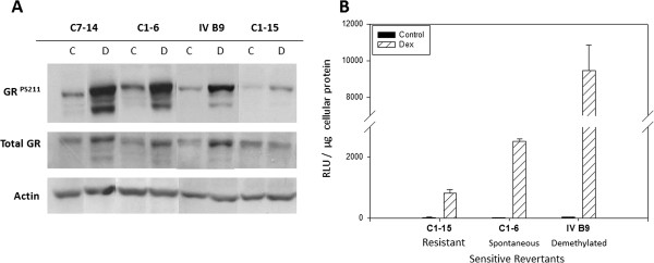 GR site - specific phosphorylation , auto - induction , and potency in Dex - sensitive and – resistant CEM cells. A . GR ser211 phosphorylation and auto-induction. Naturally Dex-sensitive CEM-C7-14 (C7-14), Dex-resistant CEM-C1-15 (C1-15), and two resistant-to-sensitive revertant clones; CEM-C1-6 (spontaneous revertant, C1-6), and CEM-IV B9 (demethylated revertant, IV B9) were treated in triplicate for 16 hours with 100 nM Dex (D) or an equivalent volume of ethanol vehicle (C). Cell lysates were then analyzed for phospho-GR S211, total GR, and actin by immunoblot. Depicted is a representative blot from 3 independent samples done, all with nearly identical results. n = 3. The data shown are from a single gel, with irrelevant sections removed, for clarity. B . Dex/GR-dependent transcriptional activity. CEM; C1-15, C1-6, and IV B9 cells were transfected by electroporation with a GRE- dependent luciferase reporter plasmid. Cells were then divided into triplicate replicates and exposed to either ethanol vehicle (control) or 1 μM Dex for 24 hours after which time extracts were made and luciferase activity analyzed. A representative experiment is shown of average RLUs normalized to μg of protein in the cellular lysate. Error bars = 1 standard deviation from the mean. Total biological replicates, n = 2 for C1-15; 5 for C1-6; and 7 for IV B9.