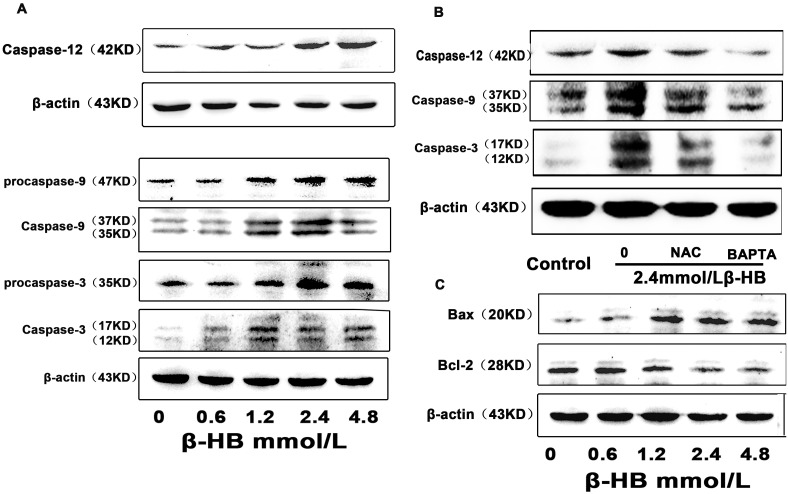 Effect of β-HB on the expression of cleaved caspase-12, -9, -3 Bax, Bcl-2 in BSMCs. A) and B) Cells were incubated 48 h with β-HB (0, 0.6, 1.2, 2.4 or 4.8 mM) in serum-free medium. Cleaved caspase-12, - 9, - 3, Bax and Bcl-2 were detected by Western blot. C) Cells were incubated 48 h with β-HB (0, 2.4 mM) in serum-free medium in the absence or presence of NAC (1 mM) or BAPTA/AM (15 µM). Cleaved caspase-12, - 9, - 3 were detected by Western blot.