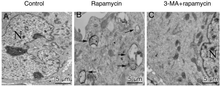 Effect of rapamycin on autophagy of GSPCs in vivo . Representative electron micrograph images show increased autophagosomes following rapamycin treatment in an SU-2 xenograft model. Three mice from each group and ten fields for each mouse were examined and displayed similar morphologic changes. TEM showed intact nuclear membranes as well as normal chromatin structure and mitochondrial numbers and distribution in cases from the untreated group. TEM also showed a remarkable increase of double-membrane autophagosomes (as indicated by arrows) in the rapamycin group and in the 3-MA plus rapamycin group. N, nucleus.