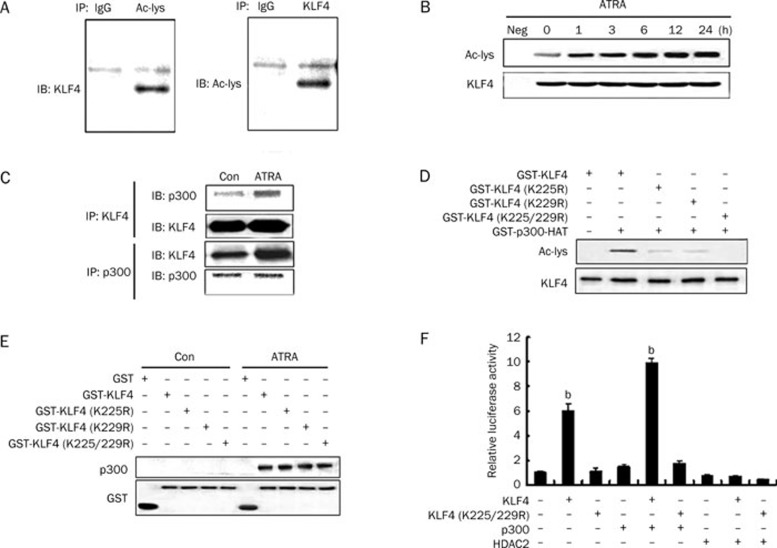 Acetylation of KLF4 by p300 enhances its binding to the mfn-2 promoter. (A) Identification of anti-Ac-lys antibody. VSMCs were treated with 10 μmol/L ATRA for 2 h, cell lysates were immunoprecipitated using an irrelevant antibody (nonimmune IgG) or the antibodies against KLF4 and acetylated lysine, the precipitates were detected via Western blotting using anti-KLF4 or anti-acetylated lysine antibodies. (B) ATRA induced KLF4 acetylation. VSMCs were treated with 10 μmol/L ATRA for the indicated times. Cell lysates were immunoprecipitated with anti-KLF4 antibody, and acetylated KLF4 was detected via Western blotting using anti-Ac-lys antibody. Blots for total KLF4 are also shown. (C) ATRA increased the interaction of KLF4 with p300. VSMCs were treated with ATRA for 1 h. Cell lysates were immunoprecipitated with anti-KLF4 or anti-p300 antibodies as indicated (IP). The precipitates were analyzed by Western blotting (IB) with anti-p300 and anti-KLF4 antibodies, respectively. (D) KLF4 was acetylated by p300 in vitro . KLF4 or its acetylation-deficient mutants (300 ng) and p300 (100 ng) were incubated with acetyl-CoA for 30 min at 30 °C, and reaction products were separated by SDS-PAGE, and then acetylated KLF4 was determined by Western blotting using anti-Ac-lys antibody. Blots for total KLF4 are also shown. (E) The interaction of p300 with KLF4 and its acetylation-deficient mutants. The lysates of VSMCs treated with or without ATRA were incubated with GST, GST-KLF4, GST-KLF4 (K225R), GST-KLF4 (K229R), or GST-KLF4 (K225/229R). After pull down with GST beads, p300 was detected via Western blotting using anti-p300 antibody, and KLF4 was detected with anti-GST antibody. (F) Acetylation of KLF4 enhanced the mfn-2 promoter activity. Luciferase assay was performed in A293 cells transfected with the mfn-2 promoter-reporter plasmid (containing nucleotides −441 to +15 of the mfn-2 promoter), along with different combinations of expression plasmids for KLF4 or its acetylation-deficient mutant (K225/229R), p300, and deacetylase HDAC2. The bars represent the means±SE from three independent experiments. b P