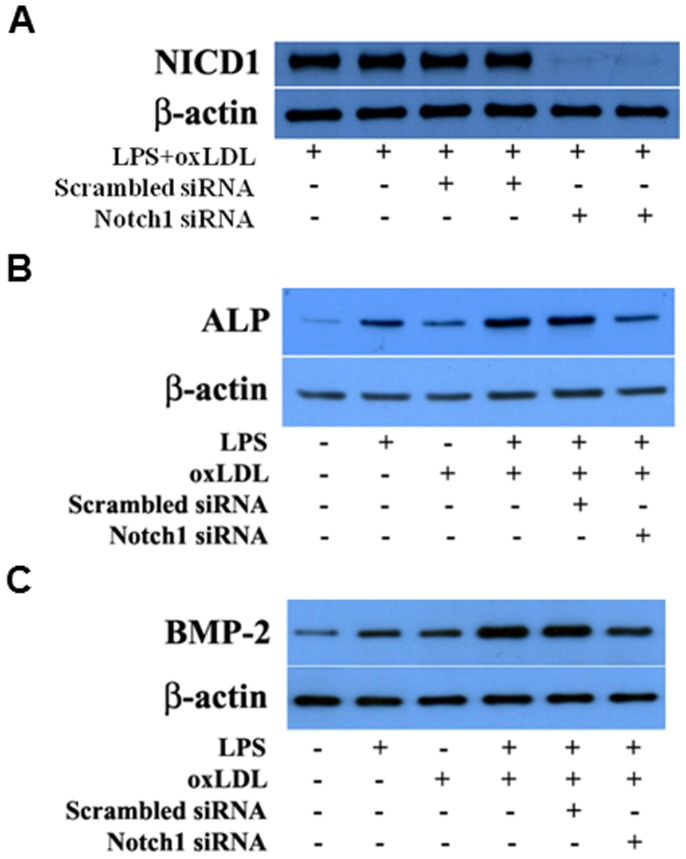 Notch1 knockdown reduces the expression of BMP-2 and ALP following stimulation with LPS plus oxLDL. Human AVICs were treated with Notch1-specific siRNA and then stimulated with LPS plus oxLDL. Representative immunoblots of 2 separate experiments show that knockdown of Notch1 results in decreased expression of BMP-2 and ALP following stimulation with LPS plus oxLDL that is associated with reduced levels of NICD1.