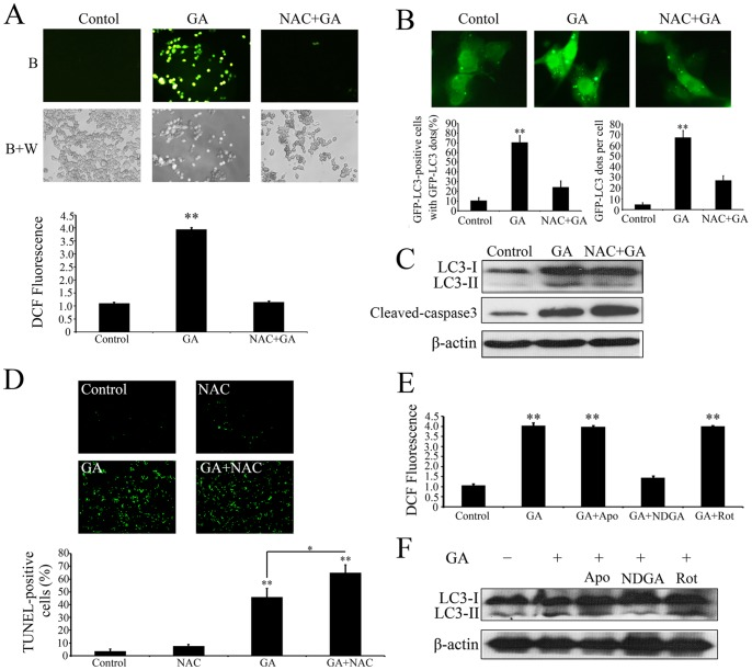 ROS is required for GA-induced autophagy. ( A ) Intracellular ROS in HCT116 cells treated with 1‰ DMSO (Control), 1.0 µM GA (GA), or 1.0 µM GA in the presence NAC (10 mM) (GA+NAC) for 24 h were detected by staining cells with 2′,7′-dichlorofluorescein diacetate under blue (B), or blue and white excitation (B+A). The DCFH-DA signal was measured using a Molecular Devices <t>SPECTRAMAX</t> M5 fluorimeter. ( B ) HCT116 cells transfected with a pEGFP-LC3 plasmid with or without GA (1.0 µM) or/and NAC (10 mM) for 24 h. Cells were defined as positive if they had 5 or more GFP-LC3 dots in the cytoplasm. The percentage of the cells with GFP-LC3 dots and the average number of GFP-LC3 dots per cell were analyzed from at least 100 random fields. ** p