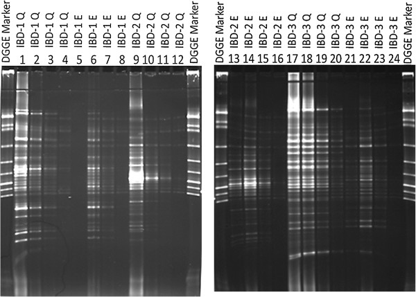 DGGE gel pictures show 16S rDNA PCR products of 3 IBD patients' diluted faecal DNA extracts: 5, 10, 15 and 20 times, respectively. Lanes 1-4, 9-12, 17-20 show 16S rDNA PCR products of diluted DNA extracted using Qiagen. Lanes 5-8, 13-16, 21-24 show 16S rDNA PCR products of diluted DNA extracted using easyMag® with 140 μL silica.