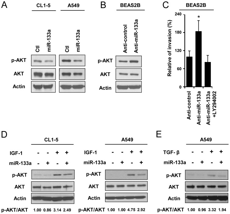 MiR-133a modulates AKT activation and suppresses IGF-1- and TGF-β-mediated AKT signaling in lung cancer cell lines. (A) 72 hours after infection with the AS2-neo (Ctl) or AS2-Neo-miR-133a viruses, the protein levels of pAKT (Ser473), AKT and β-actin were examined in CL1-5 and A549 cells. (B) 72 hours after transfection with the anti-miR-133a inhibitor, the protein levels of pAKT (Ser473), AKT and β-actin were examined in BEAS-2B cells. (C) Measurement of the cell invasion ability of BEAS-2B cells after anti-miR-133a inhibitor (100 nM) and LY294002 (50 µM) pre-treated for 48 hours. The number of invasive cells was counted 24 hours after seeding cells in a transwell containing matrigel. (D,E) AKT phosphorylation levels of stable miR-133a-expressing CL1-5 and A549 cells or control CL1-5 and A549 cells were examined after treatment with 250 ng/ml IGF-1 for 30 min (CL1-5 cells) or 2.5 min (A549 cells) (D) or treatment with 0.2 ng/ml TGF-β for 5 min (A549 cells) (E). The quantification of the immunoblot data are expressed as a pAKT (Ser473)/AKT ratio after normalization to β-actin.