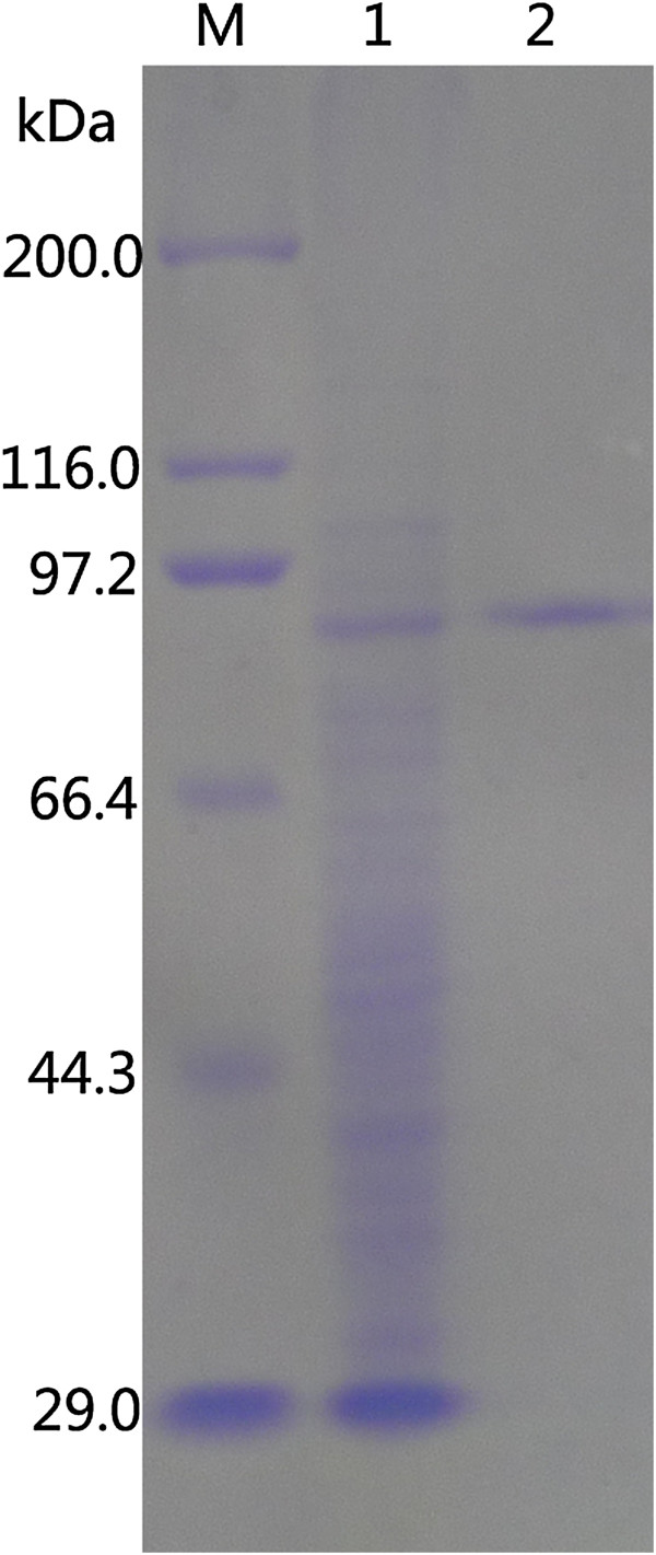 SDS-PAGE analysis of recombinant Gal308 from supernatant of E. coli BL21 (DE3) cell lysates and purified Gal308 by affinity chromatography. Lanes: M, standard protein molecular mass markers (sizes in kilodaltons are indicated on the left); 1, recombinant Gal308 from supernatant of E. coli BL21 (DE3) cell lysates; 2, recombinant Gal308 purified by His•Bind® Purification Kit. The sizes in kilodaltons of protein marker were listed as follows: porcine heart myosin (200,000 Da), E. coli β-galactosidase (116,000 Da), rabbit muscle phosphorylase B (97,200 Da), bovine serum albumin (66,409 Da), ovalbumin (44,287 Da), carbonic anhydrase (29,000 Da).