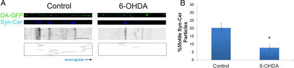 "6-OHDA also decreases synaptic vesicle movement in DA axons. A) DA-GFP cultures (Top panels) in microdevices were transduced with Syn-Cer lentivirus (Middle panels) at DIV2. Vesicular movement was assessed on DIV12–13 before and after toxin treatment. Resulting kymographs are shown below. Because of the smaller size of vesicular particles and the relative ""dimness"" of the cerulean emission, tracks of moving particles are shown in bottom panels for clarity. Red represents retrograde movement whereas blue is anterograde trafficking. B) Quantification of moving vesicles was determined as described in Materials and Methods. Scale bar: 5 μm. Mean ± SEM, total of 8 (control) and 8 (6-OHDA-treated) axons from 5–7 devices per group. * indicates p"