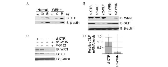 WRN regulates mRNA levels of <t>XLF.</t> (A) XLF protein levels decreased in WRN -deficient fibroblasts. Whole cell lysates were prepared from human fibroblasts GM00637G (normal) and AG11395A ( WRN deficient) and subjected to immunoblotting analysis for XLF and β-actin. (B) Inhibition of WRN expression by <t>siRNA</t> resulted in a decrease of XLF protein levels. U2OS cells were transfected with si-CTR, XLF siRNA (si1-XLF or si2-XLF) or WRN siRNA (si1-WRN or si2-WRN). Total cell lysates were harvested 48 h following transfection and subjected to immunoblotting analysis with the antibodies indicated. (C) MG132 treatment did not restore the decrease of XLF protein levels caused by the depletion of WRN. U2OS cells were treated as described in (B) except that MG132 was added to cells 4 h prior to harvest. (D) Inhibition of WRN expression led to a decrease of XLF mRNA. U2OS cells were treated as described in (B). Total RNA was extracted and subjected to real-time RT-PCR assays for XLF mRNA. XLF, XRCC4-like factor; si-CTR, control siRNA; RT-PCR, reverse transcription PCR.
