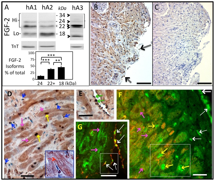 Detection of Hi-FGF-2 in human atrial tissue. Panel (A) shows representative western blot images of human atrial extracts (hA1, hA2, hA3, 50 µg/lane) probed for FGF-2 with an antibody detecting all FGF-2 isoforms. Expected migration of all human FGF-2 isoforms (34, 24, 22–22.5, and 18 kDa), corresponding to Hi- or Lo-FGF-2, is indicated by arrows; please note that the 34 kDa isoform is not detectable in tissue lysates. Western blots were also probed for cardiac troponin T (TnT) to verify equivalent loading of lanes. Samples hA1, hA2 were analyzed in small (8.3×5.5 cm 2 ) 15% polyacrylamide gels, while hA3 was analyzed in a large (16×11.5 cm 2 ) 15% polyacrylamide gel. The included graph shows percentage of each isoform over total FGF-2, where, n = 45; comparisons between groups are indicated by brackets, where *** and ** denote P