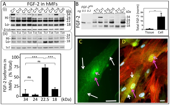 Detection of Hi-FGF-2 in human atrial myofibroblasts. Panel (A) shows two sets of western blots analyzing FGF-2 isoforms. The first set, (i), is a composite of two blots (separated by a broken line) and analyzes FGF-2 isoforms in hMF lysates (20 µg/lane), from atrial myofibroblast primary cultures obtained from 10 patients (patients 11–20), and correspondingly labeled as C11–20. The second set, (ii), also a composite of two blots separated by a broken line, analyzes FGF-2 isoforms in atrial tissue lysates from patients 11–20, and labelled T11–20 (50 µg/lane). The hMF blots or tissue blots were also probed for, respectively, β-tubulin (β-tub), or Troponin-T (TnT), as indicated. Following densitometry of the hMF blots, the % contribution of each FGF-2 isoform to the total FGF-2 signal was determined for each individual lane, and cumulative results (mean±SD) are included in graph form (n = 10). In Panel (B) , a western blot shows FGF-2 signals from 0.5 and 0.2 ng/lane of recombinant histidine tagged Lo-FGF-2 (FGF-2 His ), atrial tissue lysates (T11, T15 and T17, loaded at 50 µg/lane), side by side with FGF-2 signals from lysates obtained from corresponding primary hMF cultures (C11, C15 and C17, loaded at 10 µg/lane). The graph shows comparisons between tissue and cell lysates for their relative total FGF-2 content, assessed by densitometry as optical density (O.D.) units (n = 3). Measurements corresponding to cell FGF-2 were multiplied by 5, to correct for the 5-fold difference in total protein loading. In both panels, comparisons between groups are indicated by brackets, where P > 0.05 is marked as ns, while P