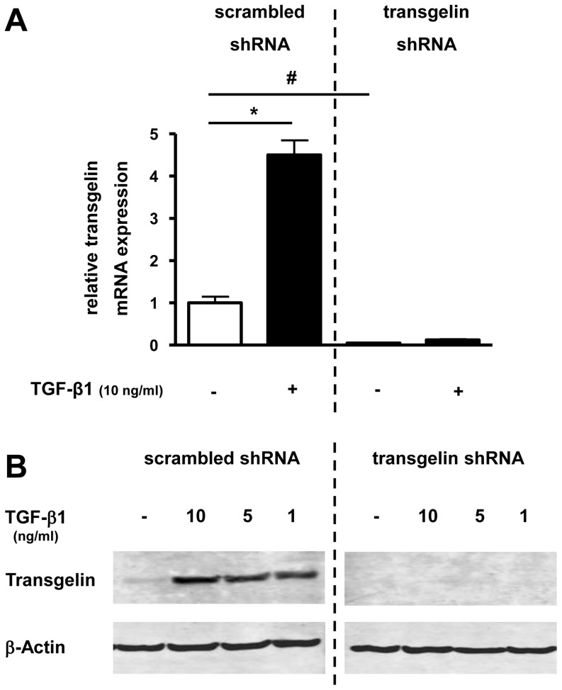 "Effect of transgelin-specific shRNA on basal and TGF-β1 mediated induction of transgelin mRNA- and protein-expression in lung epithelial cells. Transgelin was down-regulated by transgelin-specific shRNA (right side; ""transgelin shRNA"") compared with control cells, which were expressing non-specific shRNA (left side; ""scrambled shRNA""). A549 cells were then cultured in serum reduced medium (0.2% FCS) for 24 h before treatment with TGF-β1. Total RNA and protein was isolated after incubation with TGF-β1 in different concentrations. Transgelin mRNA and protein levels were detected by real time-PCR (after 24 h) (A) or by Western blot analysis (after 48 h) (B), respectively. Means±SD of at least n = 3 independent experiments are shown. In B, a representative immunoblot of at least three independent experiments is shown. * p"
