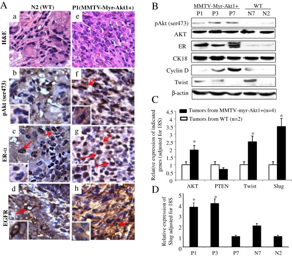 "Characterization of malignant mammary tumors. (A) H E staining (a and e) and immunohistochemical analysis were used to determine the level of phospho-Akt1 (pAkt ser473) (b and f), ERα (c and g), and EGFR (d and h) expression in mammary tumors from wild-type mouse (N2) and MMTVmyr-Akt1 transgenic mouse (P1). The arrows indicate positive staining. (B) Protein was extracted from the mammary tumors and western blot analysis was used to determine the indicate protein expression. (C) RNA was extracted from mammary carcinomas from four transgenic mice and two wild-type mice. RT-Q-PCR was performed with the indicated primers. The bar graph indicates relative expression levels of the indicated genes adjusted for 18S from the four transgenic and two wild-type mice. Each bar indicates mean and SD of three individual tests. ""*"" indicates p"