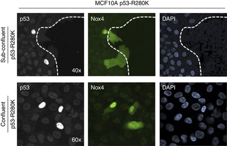 Exogenous expression of mutant p53 (R280K) induces Nox4 in confluent and motile MCF-10A cells. MCF-10A cells were transfected with p53-R280K for 48 h. Fluorescence microscopy images were taken from the edge of a sub-confluent layer of cells (upper row) and from a confluent monolayer (lower row). From left to right, cells were stained with anti-p53 antibodies detecting high expression of transfected p53-R280K (left panel), endogenous Nox4 protein expression was detected with anti-Nox4 antibodies (middle panel), and DAPI staining of nuclei, (right panel). Dotted white line in the upper panels indicates the edge of a monolayer of cells in a sub-confluent well of a chambered coverglass.