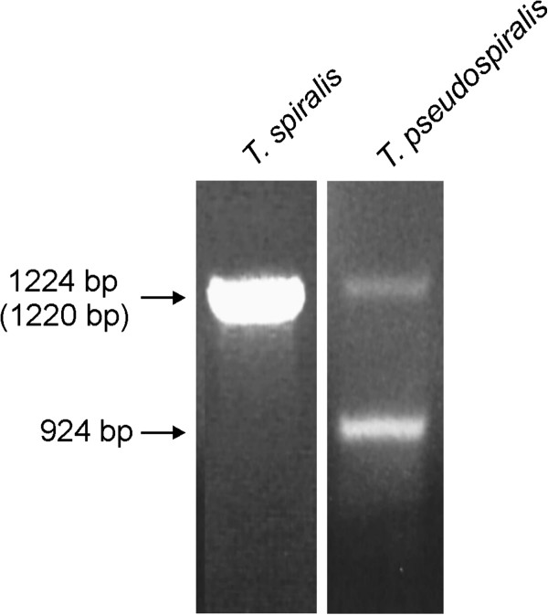 Electrophoretograms of PCR products resulting from amplification of T. <t>spiralis</t> and T. pseudospiralis genomic <t>DNA,</t> performed with primers specific for the ends of T. spiralis thymidylate synthase ORF. The accurate lengths, based on sequencing, are given for T. spiralis and T. pseudospiralis (in parentheses) genes, and for T. pseudospiralis retrogene.