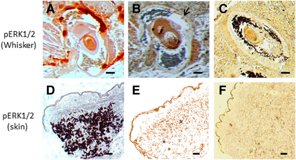 Immunohistochemical staining results for <t>pERK1/2</t> (×10). Staining is performed on whisker from the Abcc6 knockout mouse (A-C) and PXE skin tissues (D-F) . Alizarin Red stains was used to localize mineralization (A and D) . Positive staining for pERK1/2 is obtained on murine whisker ( B, arrow) and PXE skin ( E, asterisk), co-localizing with mineralization. The pERK1/2 staining being broader than the mineralization staining could represent the active mineralization process where pERK1/2 expression precedes calcification. No staining is noted in control whisker (C) and control skin tissue (F) . (n = 5 each). Scale bar = 100 μm.