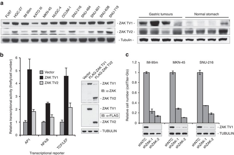 Experimental validation of ZAK function in cancer. ( a ) Immunoblots of ZAK TV1 and TV2 expressions show that protein level of TV1 is higher in gastric tumours and cell lines, compared with normal stomach tissues. ZAK TV1 was detected with Bethyl α-ZAK antibody and TV2 with Sigma α-ZAK antibody (see Methods). ( b ) ZAK TV1, but not TV2, can stimulate multiple transcriptional programs related to cancer pathways. Transcription reporter assay in 293 cells transfected with empty vector, TV1 or TV2 along with the indicated firefly luciferase reporter construct (AP1, NFkB and TCF/LEF). Activity is normalized to cell number using CellTiter-Glo. Immunoblot shows relative ZAK isoform expression from 293 cells transfected with the indicated construct. ZAK was detected with Sigma α-ZAK antibody. ( c ) Depletion of ZAK from gastric cancer cell lines inhibits cell growth. In cell lines where ZAK knockdown led to reduced viability, there was consistently high TV1 expression, while TV2 expression was marginal and variable (for example, IM-95m cell line, see for example, panel a ). Cell viability analysis was carried out 6 days after infection of gastric cancer cell lines with independent ZAK shRNAs. Cell number is normalized to shNTC-infected cells. Immunoblot indicates the level of ZAK-TV1 depletion 4 days after infection. ZAK was detected with Bethyl α-ZAK antibody.