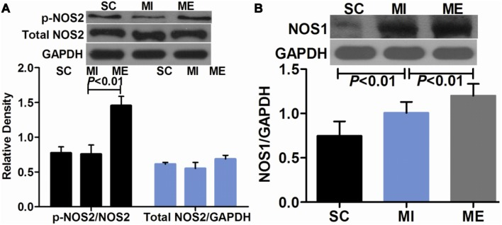 Effects of aerobic exercise on cardiac <t>NOS2</t> and NOS1 expression after MI. A. Western blot analysis of cardiac NOS2 and p-NOS2 in the SC, MI, ME groups. The expression of total NOS2 and p-NOS2 remained constant in the SC and MI groups. Compared with the MI group, NOS2 was significantly activated in the ME group. B. Western blot analysis of cardiac NOS1 in the SC, MI, ME groups. The protein expression of NOS1 was significantly higher in the ME group compared with the SC and MI groups.