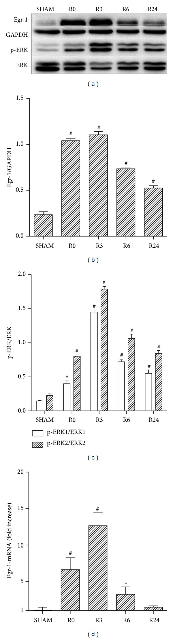 Comparison of the myocardial Egr-1and p-ERK1/2 expression at different time points after I/R. The protein levels of Egr-1and p-ERK1/2 at varying reperfusion time points (R0, R3, R6, and R24) were determined by western blot (a) and the corresponding densitometric analysis is shown in (b, c). Besides, the mRNA levels of Egr-1 were measured by qRT-PCR with data presented as relative fold increase versus sham control (d). For Egr-1 and p-ERK1/2, nearly all time points exhibit significant increase comparing with sham controls and peak levels are observed at R3 time point ( P