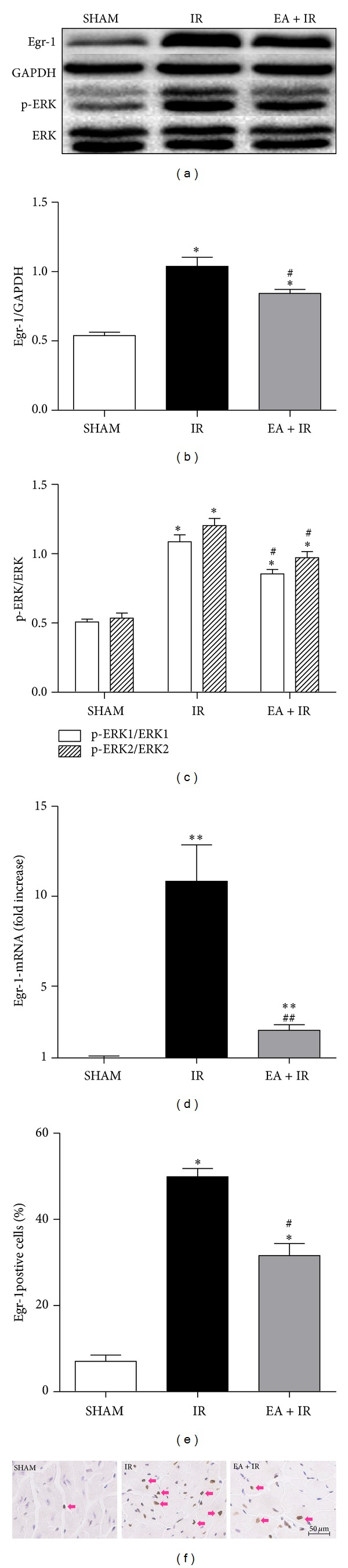 EA inhibited Egr-1 expression and ERK1/2 activation in myocardium undergoing myocardial I/R. Mice were divided into 3 groups: SHAM, IR (myocardial I/R), and EA + IR (EA stimulation was performed 30 min before myocardial I/R surgery and lasted for 30 min). After 3 h of reperfusion, the animals were sacrificed and the protein levels of Egr-1and p-ERK1/2 were measured by western blot (a) and densitometric analysis is shown in panel (b-c) ( n = 3/group). The mRNA levels of Egr-1 in these three groups are represented as the relative fold increase versus sham controls (d, n = 3/group). Immunohistochemical staining of Egr-1 was performed and the quantitation results of Egr-1positive cells were shown in panel (e). Representative images were shown in panel (f). Pink arrows indicate Egr-1positive cells. Scale bar = 50 μ m. * P