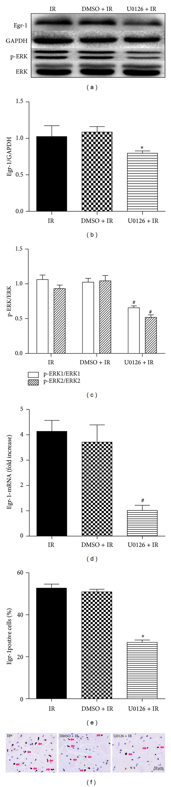 ERK1/2 activation is responsible for Egr-1expression during myocardial I/R injury. Mice received U0126 (an inhibitor of ERK1/2 kinase, 20 mg/kg, i.p.) or its vehicle 0.1% v/v DMSO treatment before surgery. As described previously, myocardial expression of Egr-1 and p-ERK1/2 was measured using western blot (a). The corresponding densitometric analysis is shown in (b-c) ( n = 3/group). The mRNA levels of Egr-1 are shown as fold increase versus U0126 + IR (d, n = 3/group). Immunohistochemical staining of Egr-1 was performed and the quantitation results of Egr-1positive cells were shown in panel (e). Representative images were shown in panel (f) (3 mice /group). Pink arrows indicate Egr-1positive cells. Scale bar = 50 μ m. * P