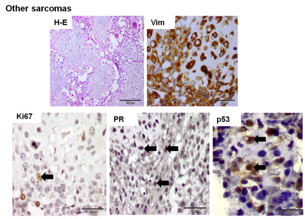 Histological and immunohistochemical photographs of other canine mammary sarcomas. The histological sample was stained with the standard hematoxylin and eosin (H-E) method. Immunopositivity (nuclear or cytoplasmic) is shown as brown precipitate in neoplastic cells. The EnVision + System-HRP detection system was used, and the signal was visualized with chromogen 3,3-diaminobenzidine 3-3' (DAB). Arrows indicate positive nuclear staining of cells. The images were obtained under the Olympus BX41 microscope. Original magnification: H-E (x100), Vim (x400), Ki67 (x400), PR (x400), p53 (x1000).