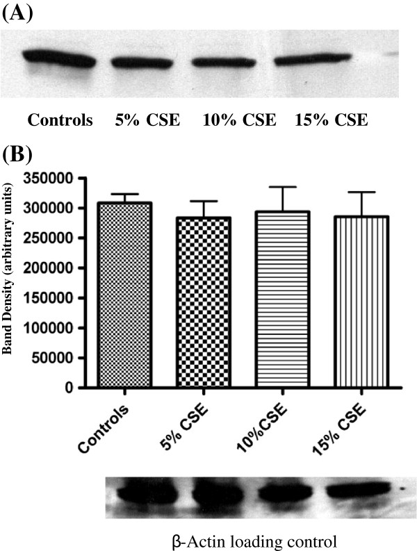 Western blot analysis of <t>caspase-3</t> from lysates of rat periodontal ligament fibroblasts exposed to different concentrations of CSE. Rat PDL fibroblasts cultured and grown to 70–80% confluence in an incubator at 37°C. The cells were exposed to different concentrations of CSE (5%, 10% and 15%) (v/v) in serum free media for 60 min keeping controls which were not exposed to CSE. (A) Lane 1: cell lysates not exposed to CSE. Lane 2: cell lysates exposed to 5% CSE. Lane 3: Cell lysates exposed to 10% CSE. Lane 4: Cell lysates exposed to 15% CSE. (B) Densitometric analysis of band intensity shows each bar represents the mean ± SEM of three experiments. A β-actin loading control is shown beneath the plot.