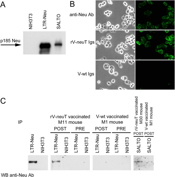 Anti-Neu humoral response following rV- neu T vaccination. Panel A : p185 Neu expression in NIH3T3 cells encoding normal rat Neu (LTR-Neu) and in Neu-overexpressing BALB- neu T salivary gland cancer (SALTO) cells by western blotting. A specific polyclonal anti-Neu (C18) antibody was used. NIH3T3 cells were used as negative control. Panel B : Igs from rV- neu T vaccinated mice recognize p185 Neu expressed on the surface of SALTO tumor cells. Immunofluorescence was performed using purified Igs (1μg/ml) of BALB- neu T mice vaccinated with rV- neu T or V-wt. The specific monoclonal antibody anti-Neu Ab4 was used as positive control. Olympus <t>BX51</t> microscope and I.A.S. version 007 000 Deconvolution 2D software were used to deconvolve z series images of stained native cells. Original magnification x400. Panel C : Serum antibody response of mice upon vaccination with rV- neu T. Numbering identifies immune sera of individual mice. Mouse pre-immune or immune sera were collected prior to vaccination or one week after the second immunization and employed in immunoprecipitation of Neu from LTR-Neu or SALTO tumor cells. p185 Neu specificity was visualized by immunoblotting analysis using receptor-specific polyclonal antibody of immunoprecipitates and compared to direct immunoblotting of LTR-Neu lysate as positive control, or NIH3T3 as negative control.